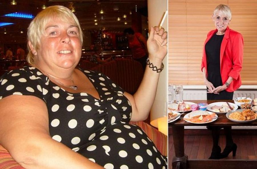 chirurgia-gastrica-dimagrire-5000-calorie-al-giorno