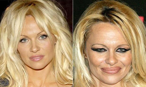 pamela-anderson-chirurgia-estetica