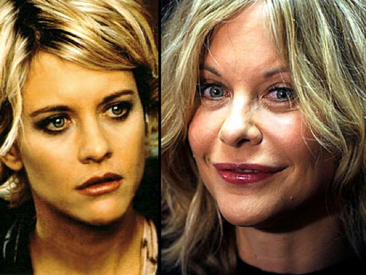 meg-ryan-before-and-after-plastic-surgery-chirurgia-estetica