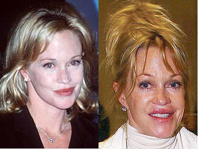 melanie-griffith-facelift-chirurgia-estetica